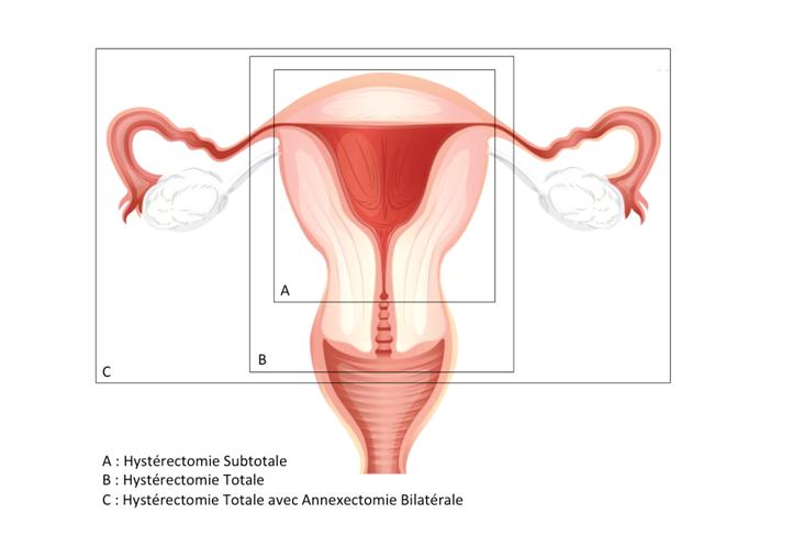 Chirurgie de l'utérus