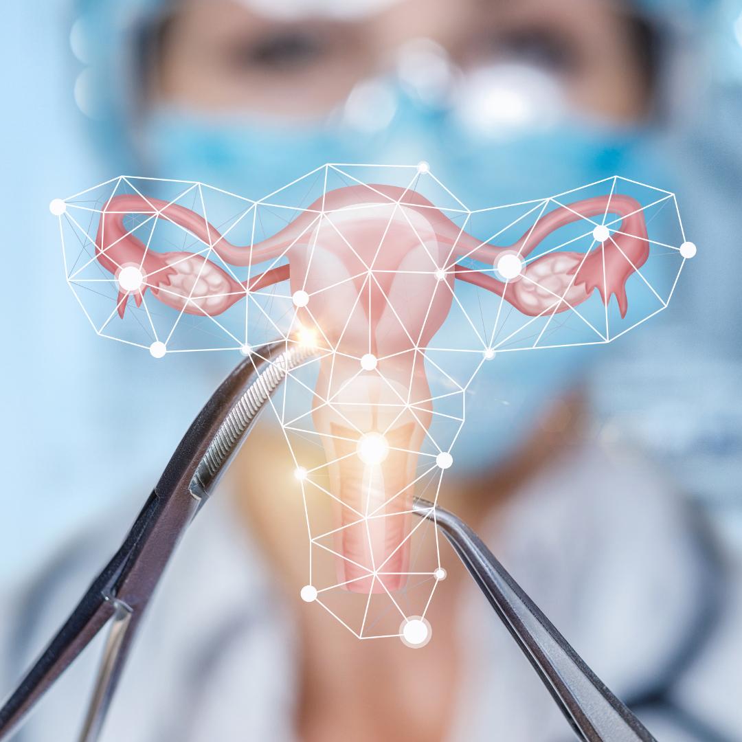 Chirurgie de l'utérus 1